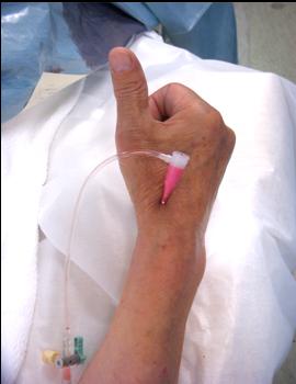 橈骨遠位動脈穿刺