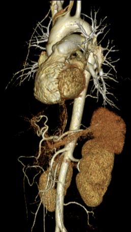 心臓/冠動脈CT2